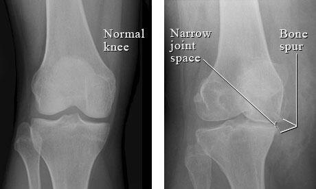 Physical Therapy Role In The Presence Of Knee Hip Arthritis